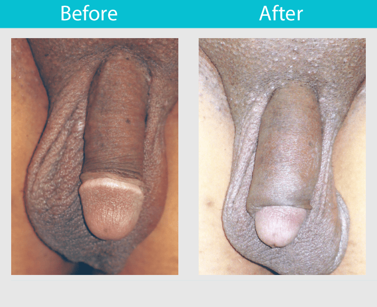 Before After Penis Enlargement Surgery Photos: Length